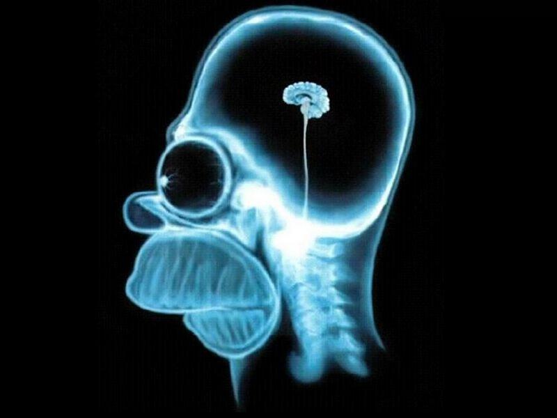 radiografia Hommer Simpson